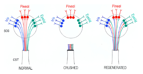 Model of misrouting of fibers during reinnervation of the SCG. fist labelled normal with fibers labelled Iris, in blue, Pineal, in red, and Eyelid, in green radiating form bottom cone named CST into circle named SCG. second labelled crushed with same sturcture except fibers are severed. last labelled Regenerated with model similar to first except Iris, Pineal & Eyelid each have blue, red, green fibers.